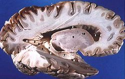 250px-Human_brain_right_dissected_lateral_view_description